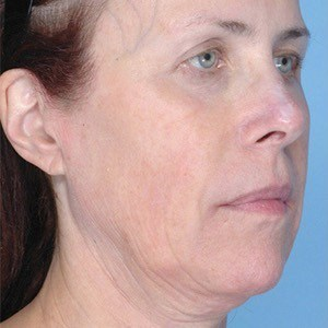 Trust your Ultherapy treatment to SkynBar of Atlanta