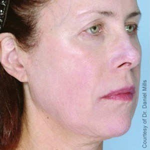 Trust your Ultherapy treatment to SkynBar of Atlanta in Buckhead
